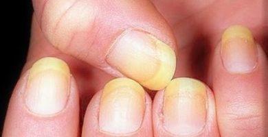 salud uñas